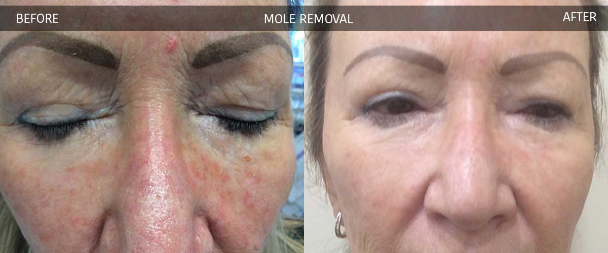 Mole Removal - Cosmetic Treatments - Crows Nest Cosmetic & Vein Clinic Sydney