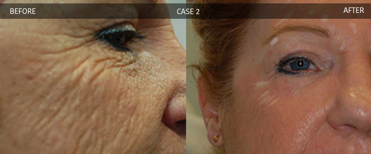 Cosmetic Treatments - Crows Nest Cosmetic & Vein Clinic Sydney