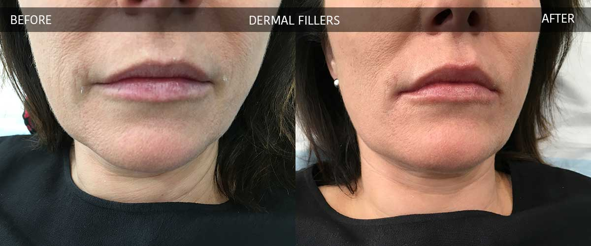 Before and After Photos - Crows Nest Cosmetic & Vein Clinic