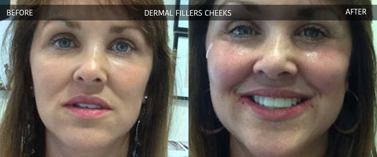 Dermal Fillers - Cosmetic Treatments - Crows Nest Cosmetic & Vein Clinic Sydney