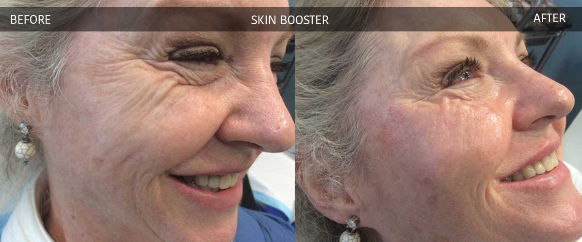 Skin Booster - Cosmetic Treatments - Crows Nest Cosmetic & Vein Clinic Sydney
