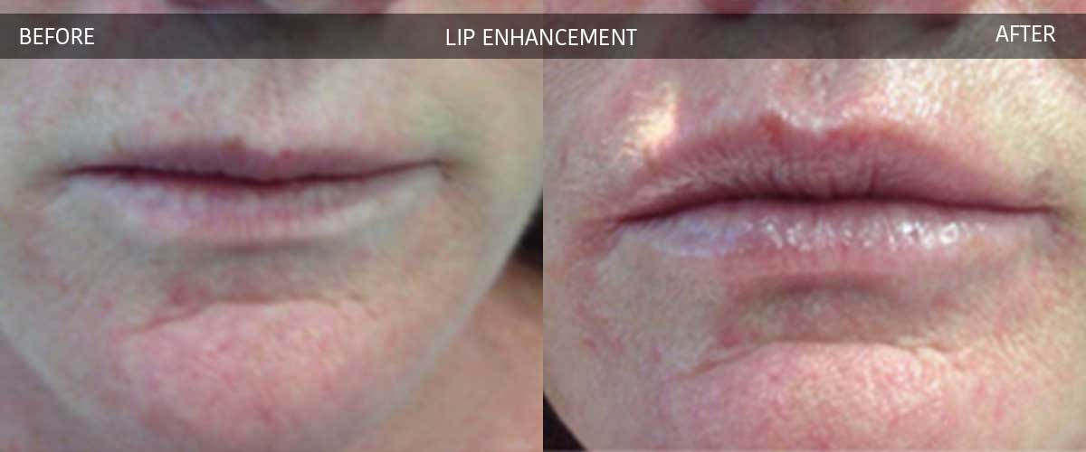 Lip Enhancement - Cosmetic Treatments - Crows Nest Cosmetic & Vein Clinic Sydney