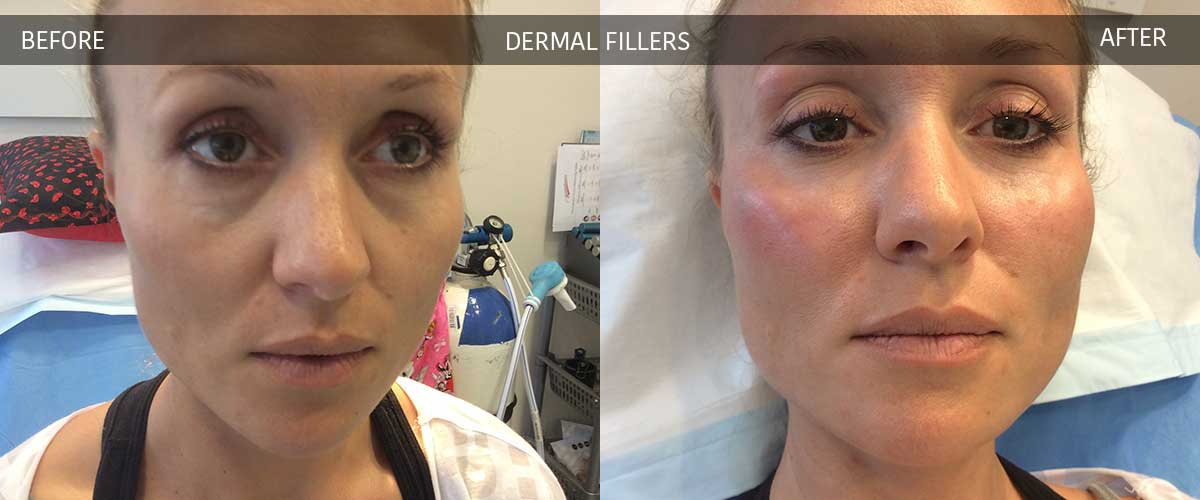 Dermal Fillers - Skin Treatments - Crows Nest Cosmetic Clinic