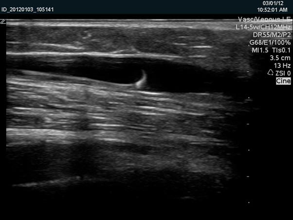 Endovenous Laser Ablation Evla Crows Nest Cosmetic And