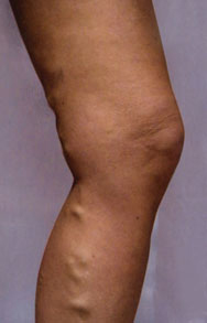 Varicose Vein Removal - Endovenous Laser Ablation Before