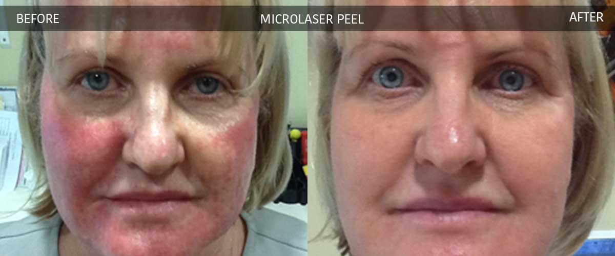 Microlaser Peel - Cosmetic Treatments - Crows Nest Cosmetic & Vein Clinic Sydney