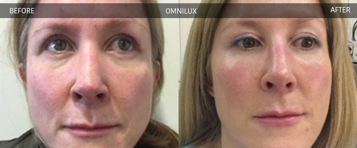 Omnilux Treatments - Cosmetic Treatments - Crows Nest Cosmetic & Vein Clinic Sydney