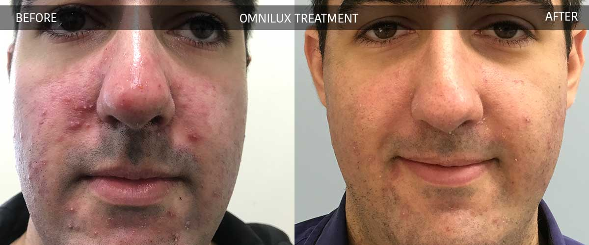Omnilux Acne Treatment Crows Nest Cosmetic and Vein Clinic