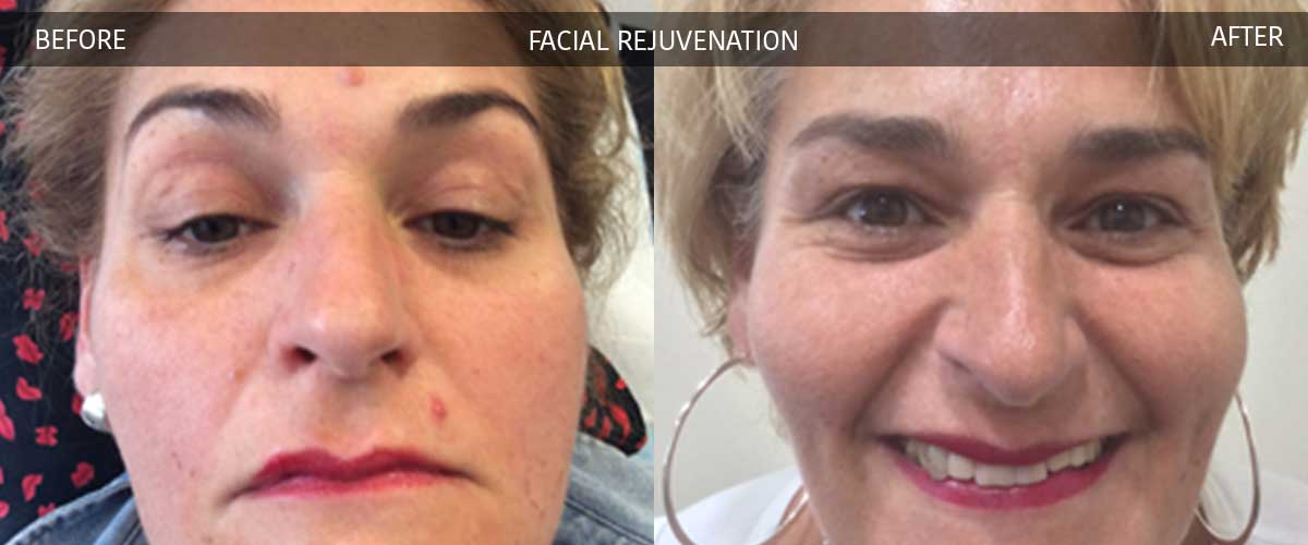 Facial Rejuvenation - Cosmetic Treatments - Crows Nest Cosmetic & Vein Clinic Sydney