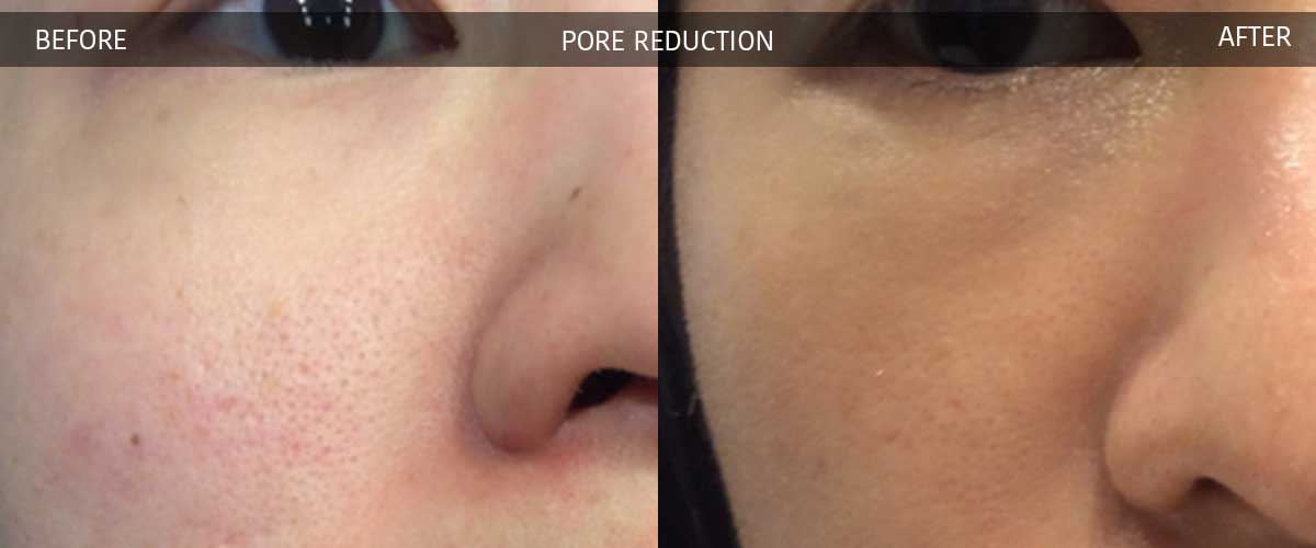 Pore Reduction - Cosmetic Treatments - Crows Nest Cosmetic & Vein Clinic Sydney