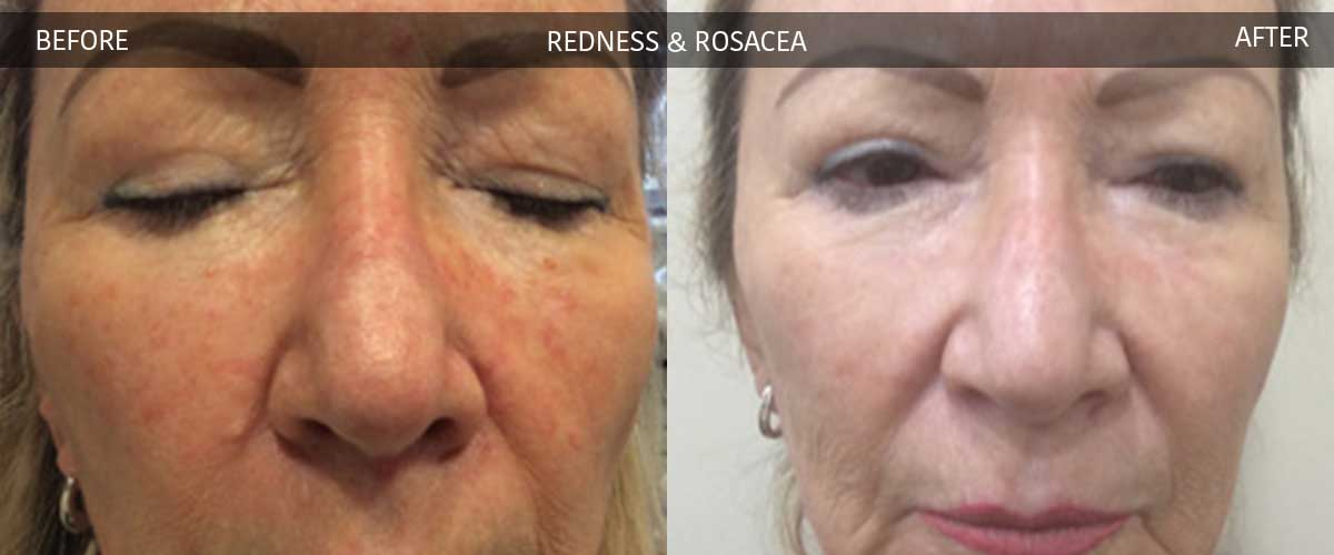 Redness & Rocacea Treatments - Cosmetic Treatments - Crows Nest Cosmetic & Vein Clinic Sydney