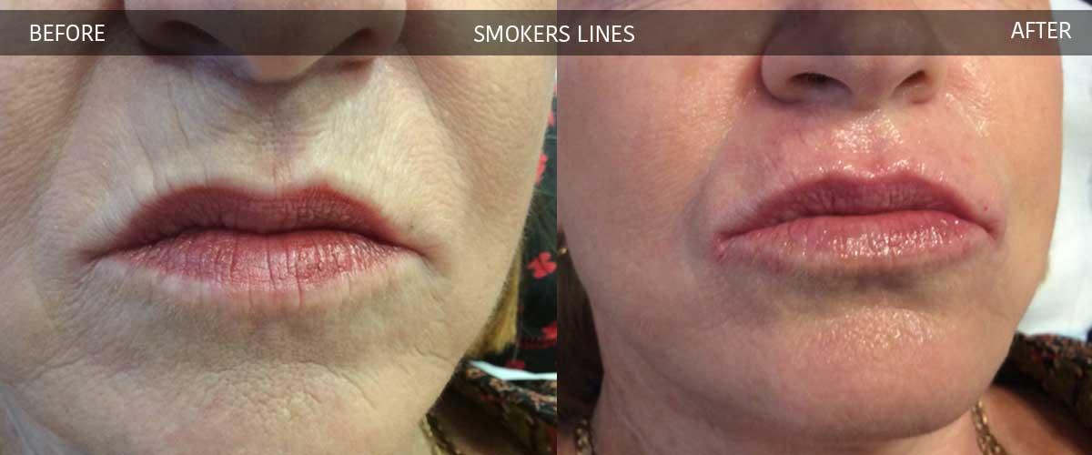 smokerslinesbeforeaftergallery2