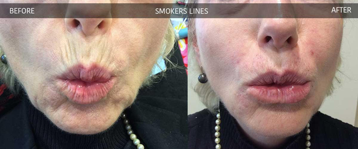 smokerslinesbeforeaftergallery4