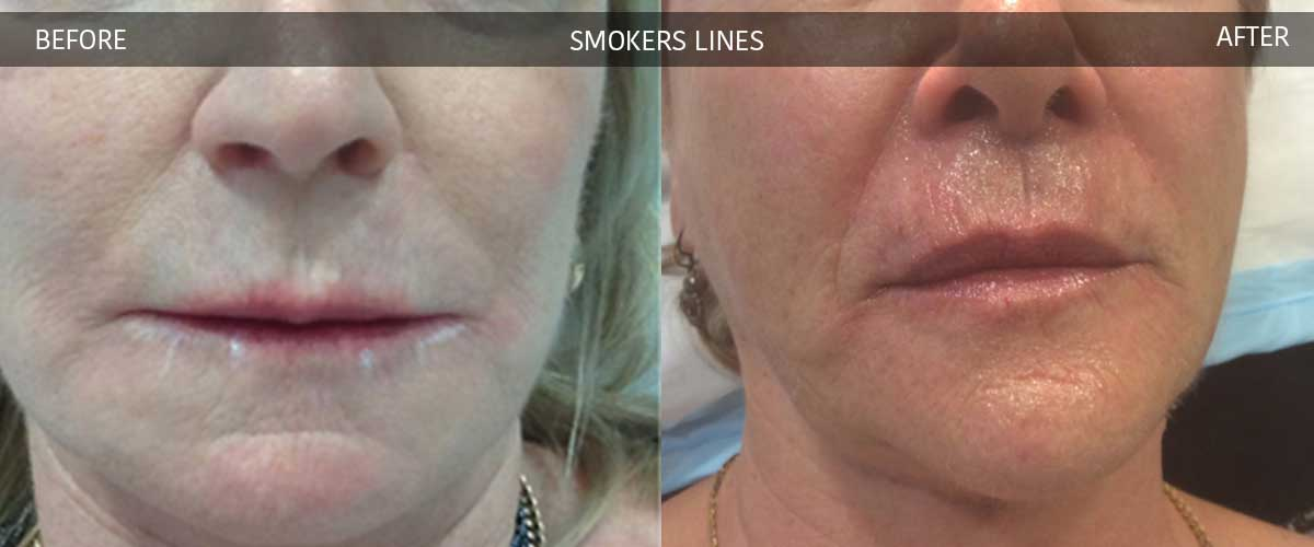 Smoker's Lines - Before and After - Crows Nest Cosmetic & Vein Clinic