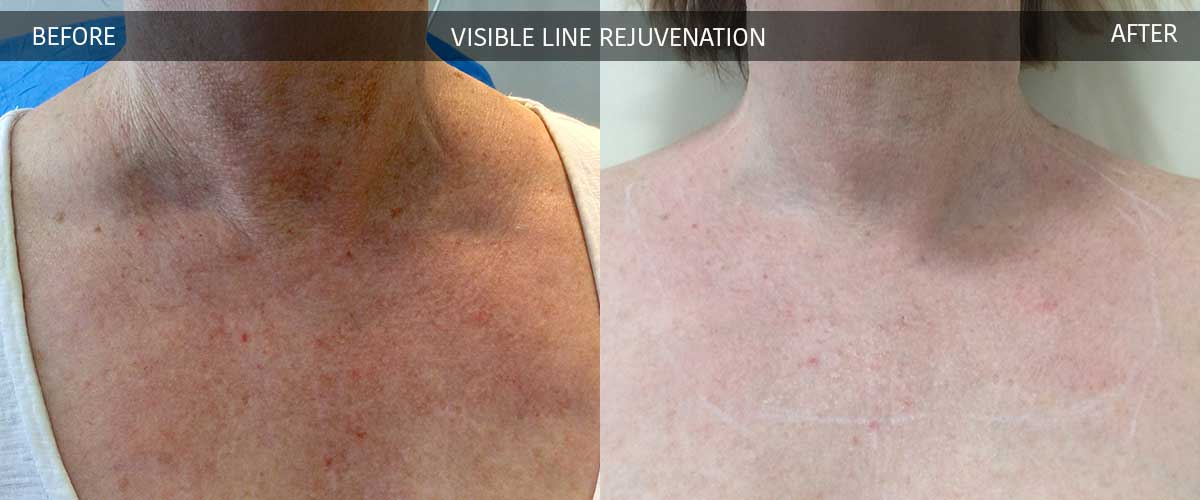 Visible Line Rejuvenation - Cosmetic Treatments - Crows Nest Cosmetic and Vein Clinic