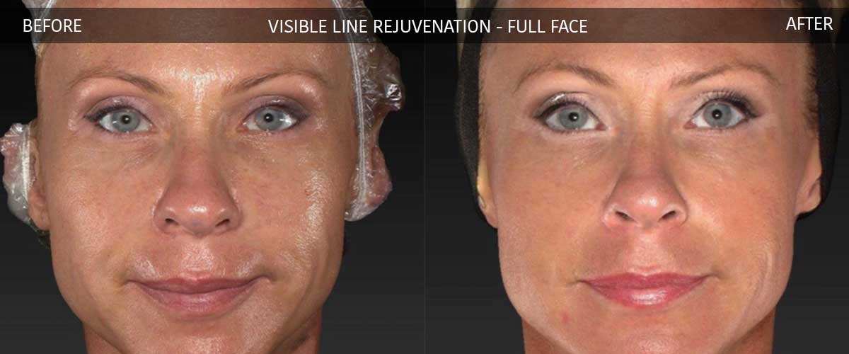 Visible Line Rejuvenation - Skin Treatments - Crows Nest Cosmetic Clinic