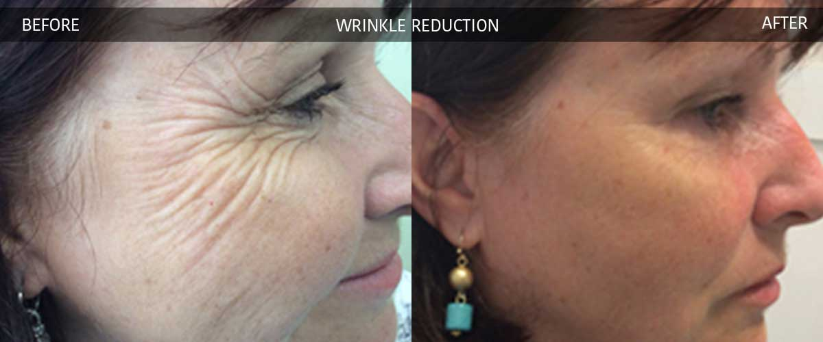 wrinklereduction1