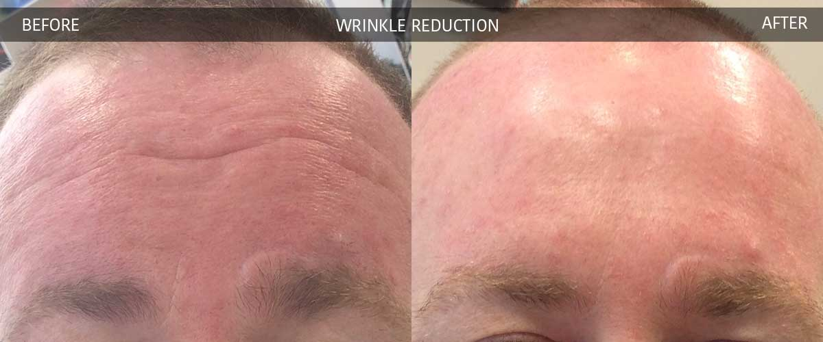 WrinkleReductionBeforeAfterGallery-2017-1