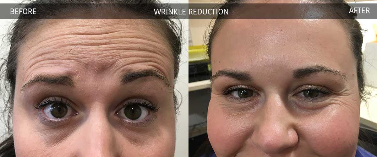 WrinkleReductionBeforeAfterGallery-2017-2