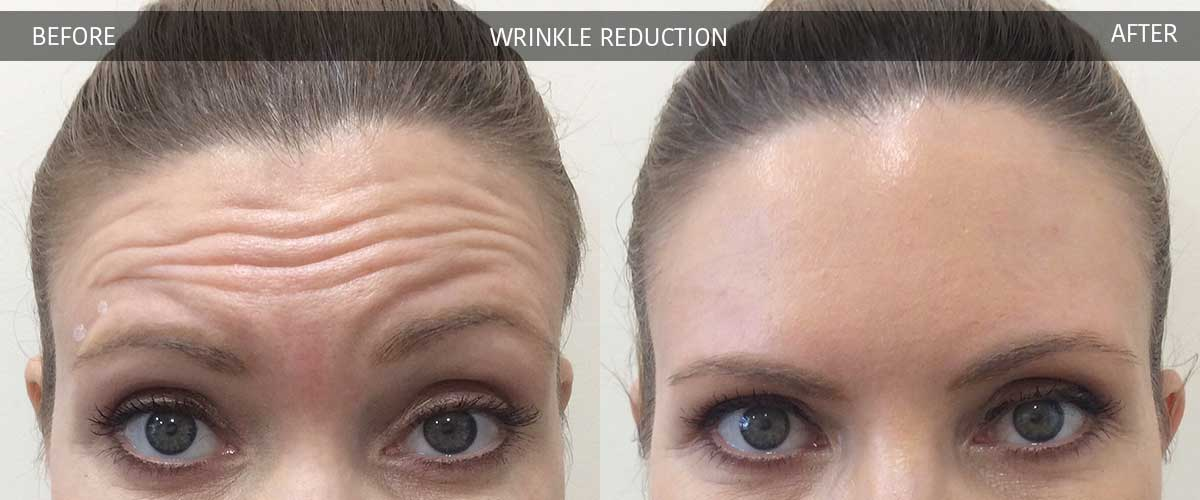 WrinkleReductionBeforeAfterGallery-2017-3