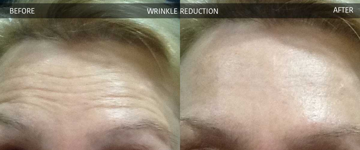 wrinklereductionbeforeaftergallery2