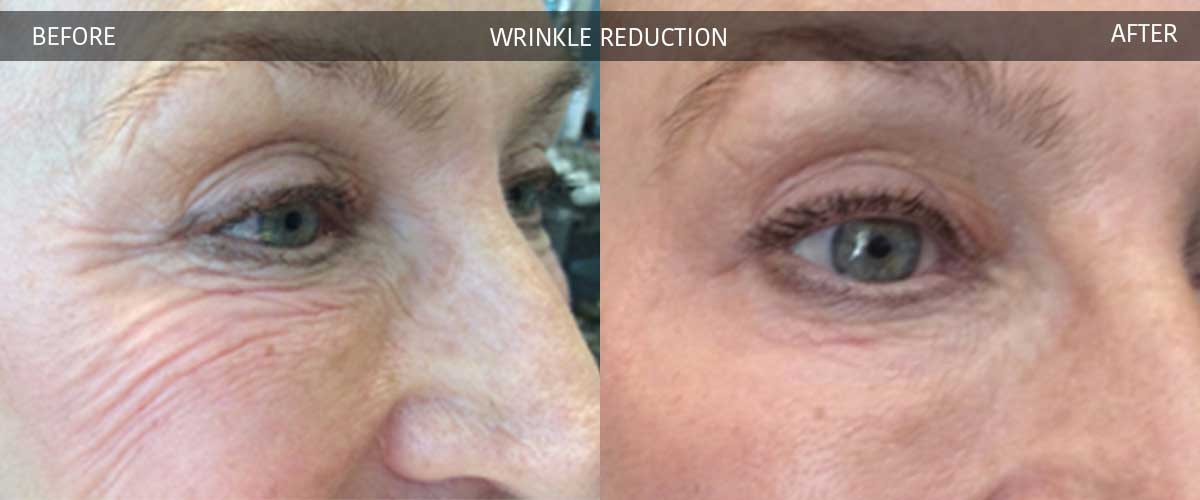wrinklereductionbeforeaftergallery3