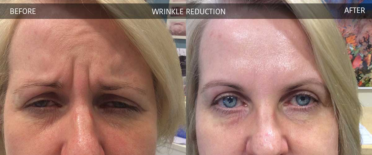 Wrinkle Reduction Crows Nest Cosmetic And Vein Clinic