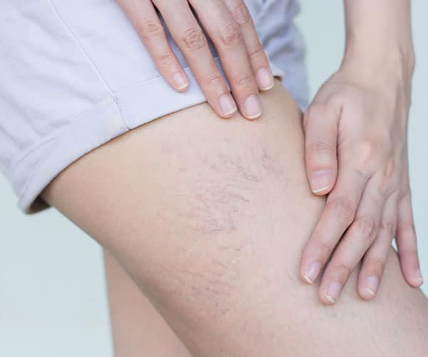 Spider Vein Removal - Woman with spider veins on leg.
