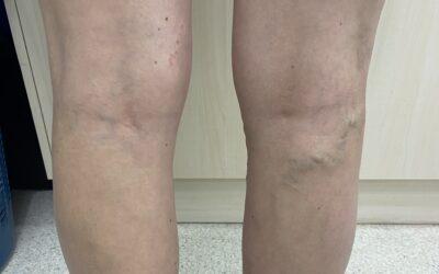 Are Varicose Veins Dangerous?
