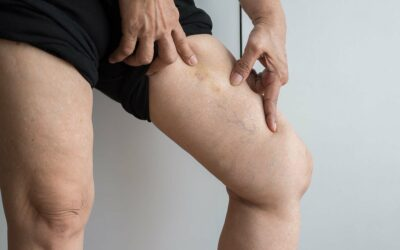 Spider Vein Removal – How Much Does it Cost?